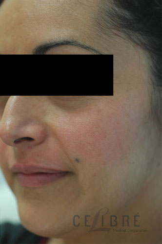 Melasma After Pictures 5