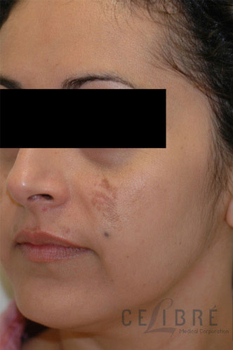 Melasma Before Pictures 5