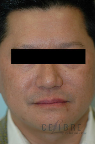 Melasma After Pictures 6