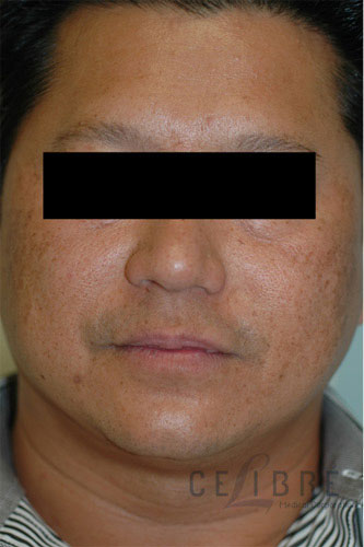Melasma Before Pictures 6