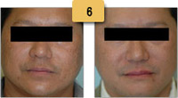 Melasma Before and After Pictures Sm 6