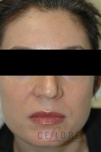 Melasma After Pictures 7