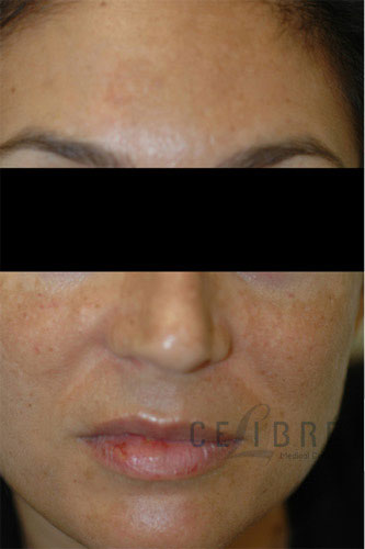 Melasma Before Pictures 7