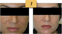 Melasma Before and After Pictures Sm 7