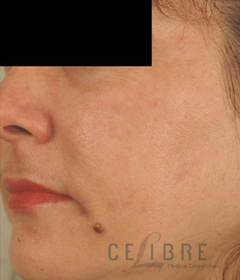Melasma After Pictures 8