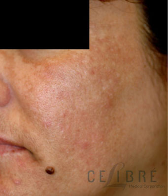 Melasma Before Pictures 8