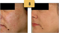 Melasma Before and After Pictures Sm 8