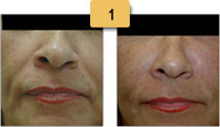 Perlane Injections Before and After Pictures Sm 1