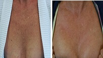 Poikiloderma Removal Before and After Pictures Sm 2