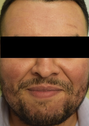 Profractional Laser Resurfacing After Pictures 1