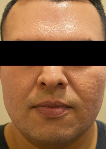 Profractional Laser Resurfacing Before Pictures 1