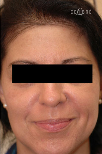 Profractional Laser Resurfacing After Pictures 2