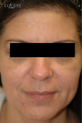 Profractional Laser Resurfacing Before Pictures 2