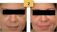 Profractional Laser Resurfacing Before and After Pictures Sm 2