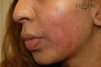 Profractional Laser Resurfacing After Pictures 3