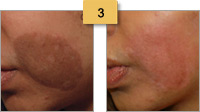 Profractional Laser Resurfacing Before and After Pictures Sm 3