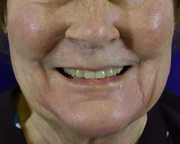 Profractional Laser Resurfacing After Pictures 4