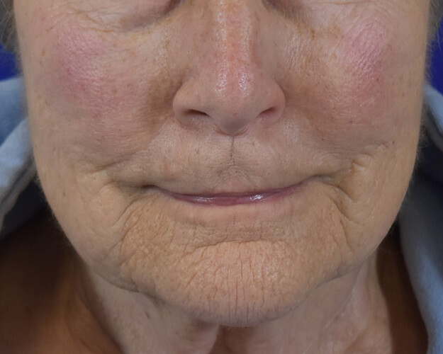 Profractional Laser Resurfacing Before Pictures 4
