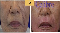 Profractional Laser Resurfacing Before and After Pictures Sm 5