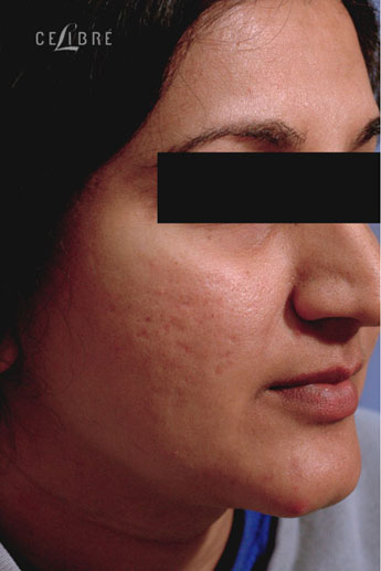 Profractional Laser Resurfacing Before Pictures 6