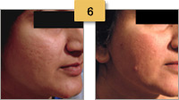 Profractional Laser Resurfacing Before and After Pictures Sm 6