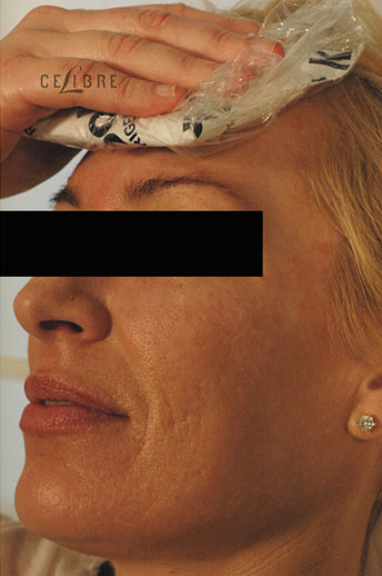 Profractional Laser Resurfacing After Pictures 7