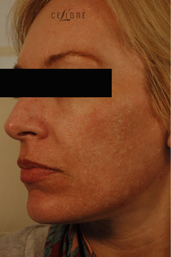 Profractional Laser Resurfacing Before Pictures 7