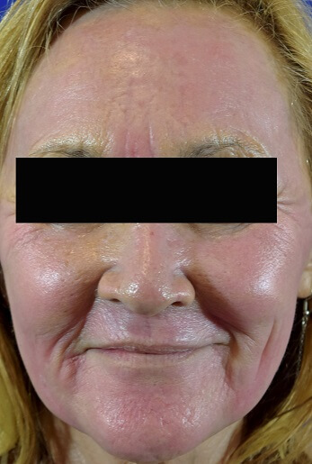 Profractional Laser Resurfacing After Pictures 8