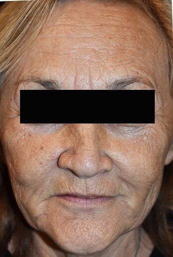 Profractional Laser Resurfacing Before Pictures 8