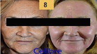 Profractional Laser Resurfacing Before and After Pictures Sm 8