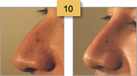Nose Shaping Radiesse Before and After Sm 10