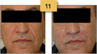 Radiesse Injections Before and After Pictures Sm 11