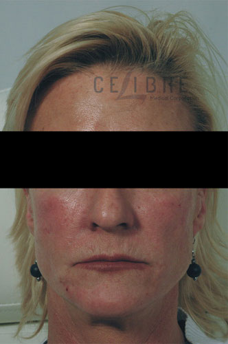 Radiesse Injections After Facial Shaping Picture 1