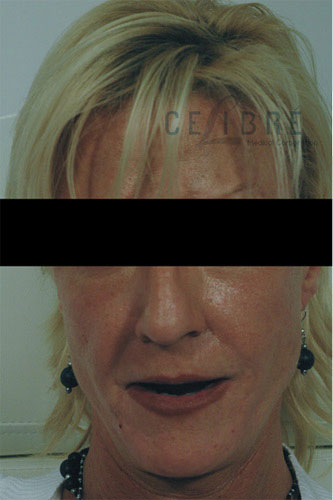 Radiesse Injections Before Facial Shaping Picture 1