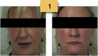 Radiesse Before and After Facial Shaping Pictures Sm 1