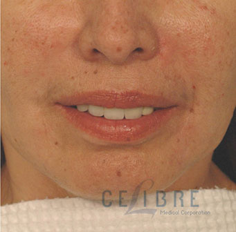 Radiesse Injections After Pictures 2