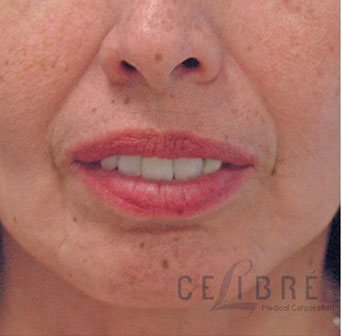Radiesse Injections Before Pictures 2