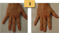 Radiesse Injections Before and After Hand Rejuvenation Photos Sm 3