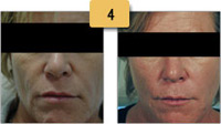 Liquid Facelift Radiesse Injections Before and After Pictures Sm 4