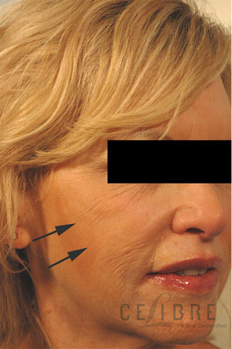 Radiesse Injections Before Pictures 6