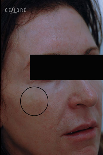 Restylane Injections After Pictures 10