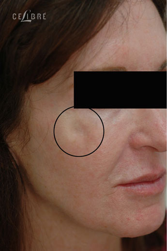 Restylane Injections Before Pictures 10