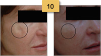Restylane Injections Before and After Pictures Sm 10