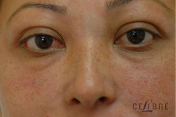 Restylane Injections Before Pictures 11