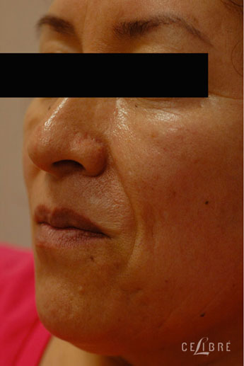 Restylane Injections Before Pictures 12