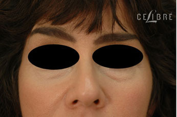 Restylane Injections Before Pictures 13