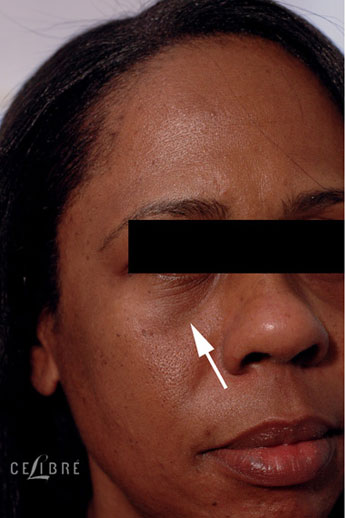 Restylane Injections Before Pictures 14