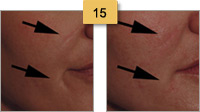 Restylane Injections Before and After Pictures Sm 15