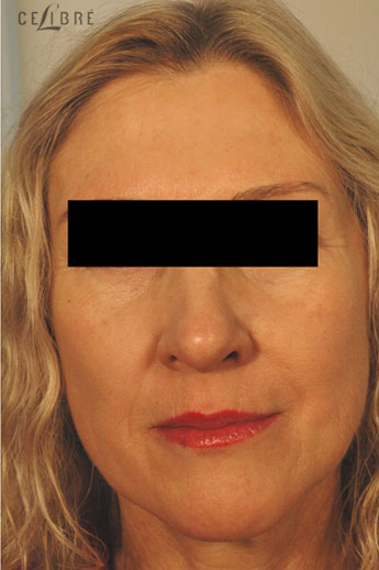 Restylane Injections After Pictures 16