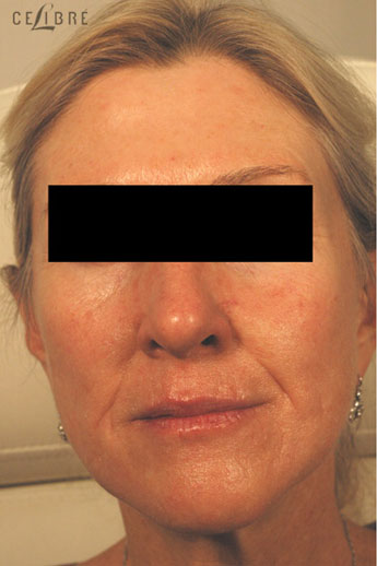 Restylane Injections Before Pictures 16